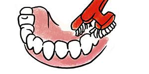 Reinigung der Kauflächen einer Zahnprothese