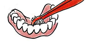 Reinigung der Innenseite einer Zahnprothese